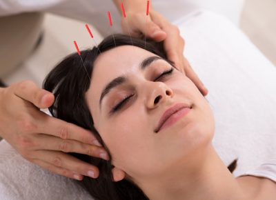 Aging and Facial Acupuncture