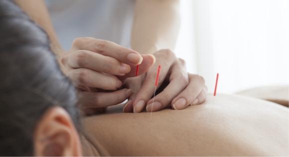 Acupuncture process