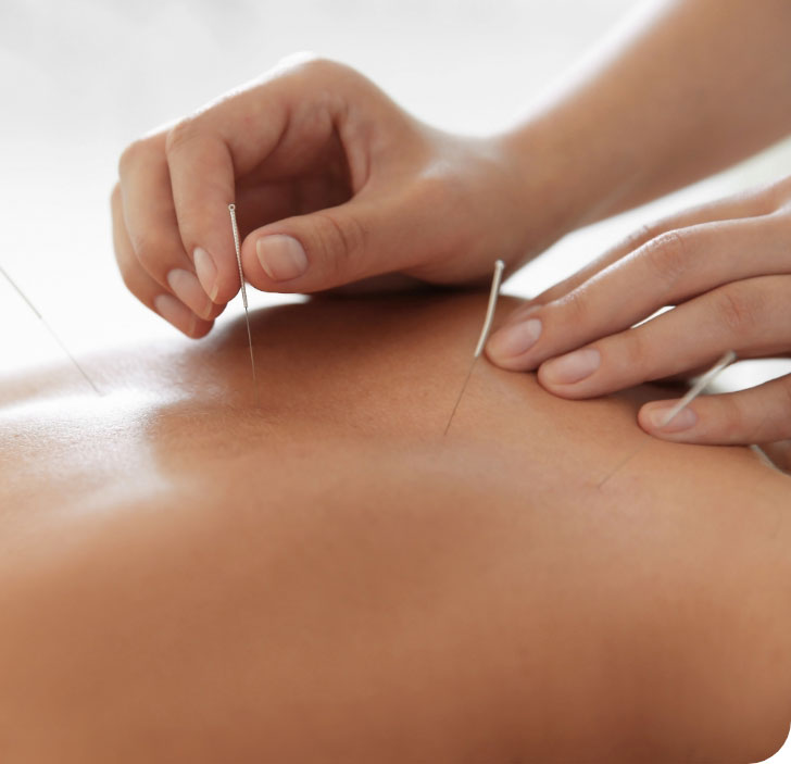 Acupuncture and Chinese Herbal Medicine for Energy Depletion and Imbalance